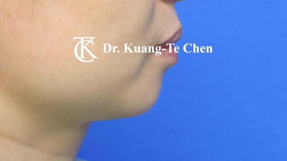 墊下巴手術Case 1術前 -3