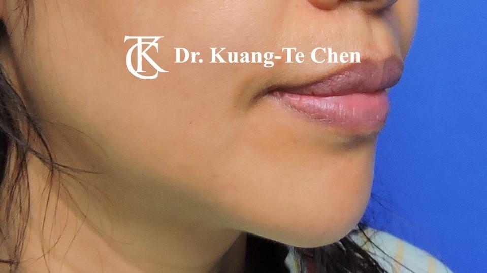 嘴邊下垂輪廓線微創雷射溶脂手術陳廣得醫師Case2 術前-3