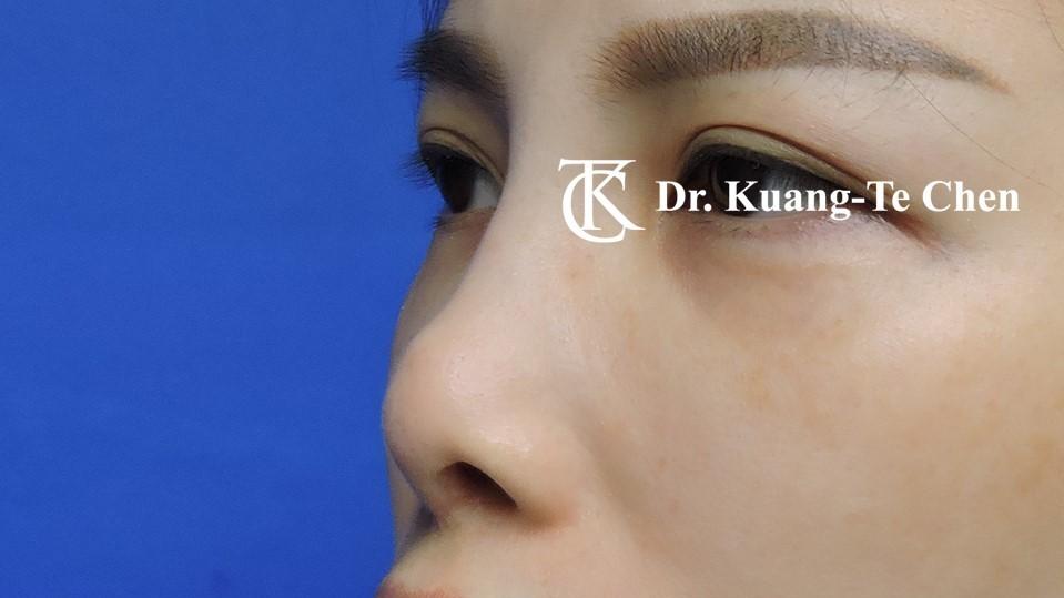 二次隆鼻手術 Case 2 術前-1