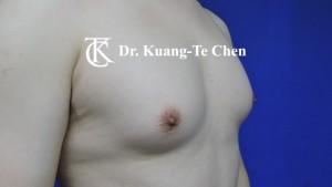 男性女乳症手術術前 陳廣得專業整形12