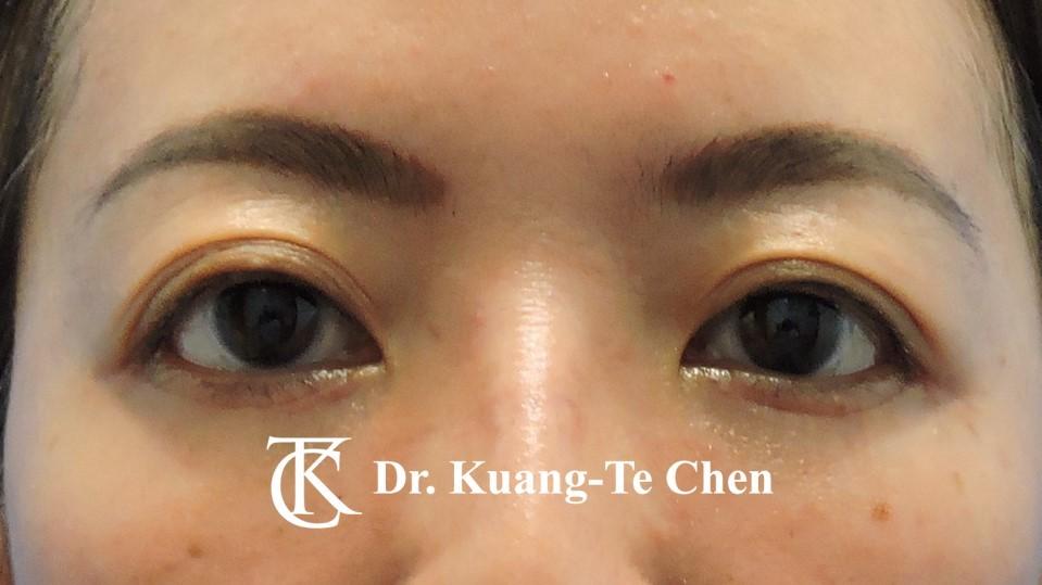 眼袋外開脂肪下推Case 1 術後一個月-1