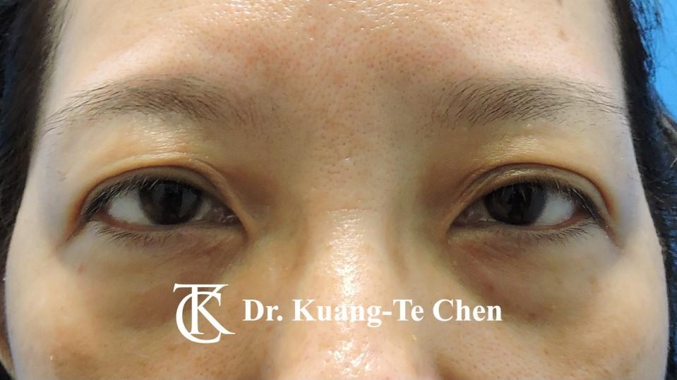 眼袋內開淚溝補脂Case 2 術前-1