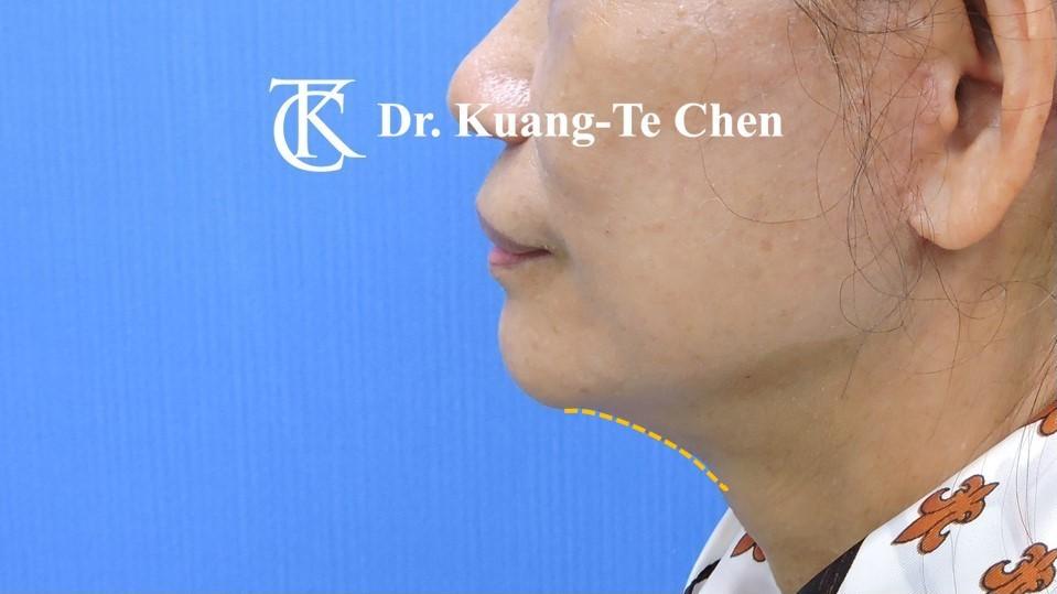 中下臉拉皮 陳廣得醫師專業拉皮手術Case2術後-2