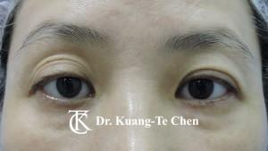 雙眼皮重修提眼肌眼窩補脂術後3