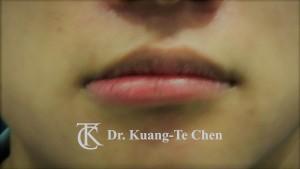 不對稱唇 下唇修唇術前3