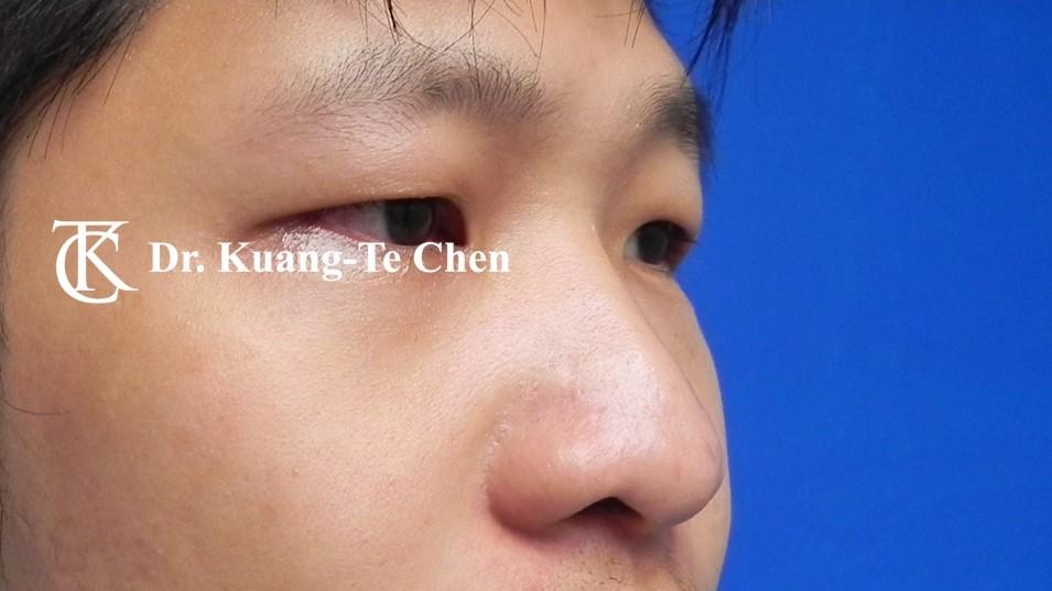 韓式隆鼻,陳廣得醫師,台北隆鼻