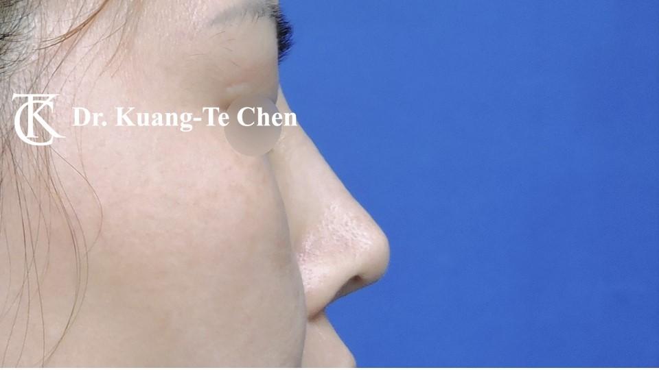 二次隆鼻 Case 1 術前-4