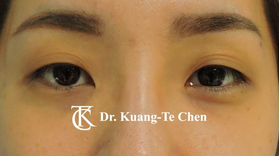 雙側輕度提眼瞼肌無力術前7