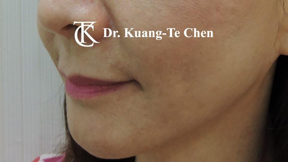 嘴邊下垂輪廓線微創雷射溶脂手術陳廣得醫師Case1 術後 -1