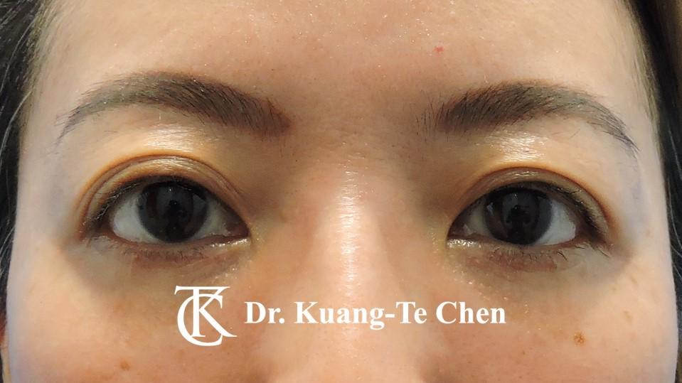 眼袋外開脂肪下推Case 1 術後三個月-1