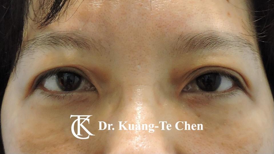 眼袋內開淚溝補脂Case 2 術後-1