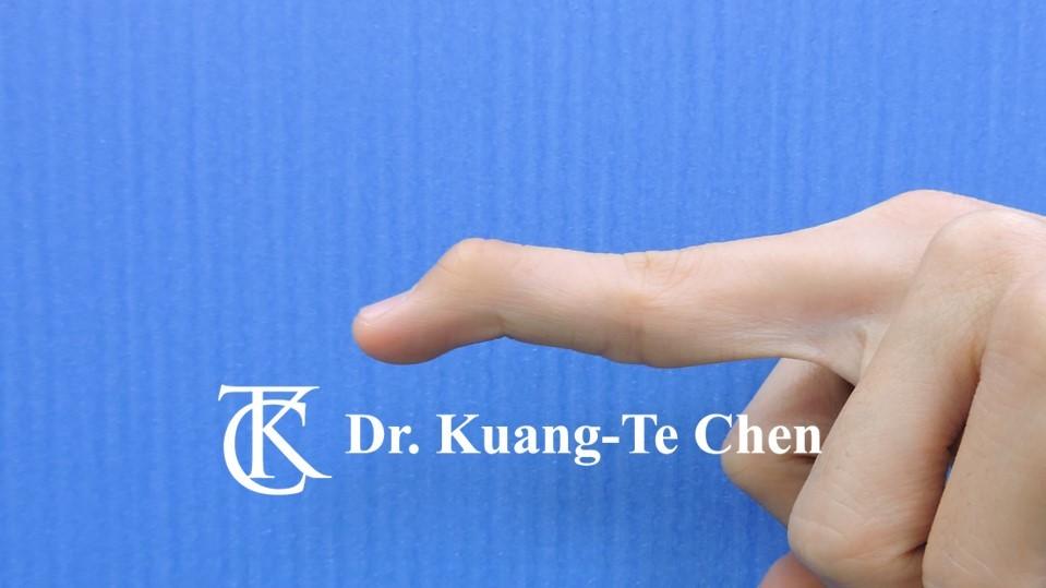 鎚狀指手術Case 2 術前-1