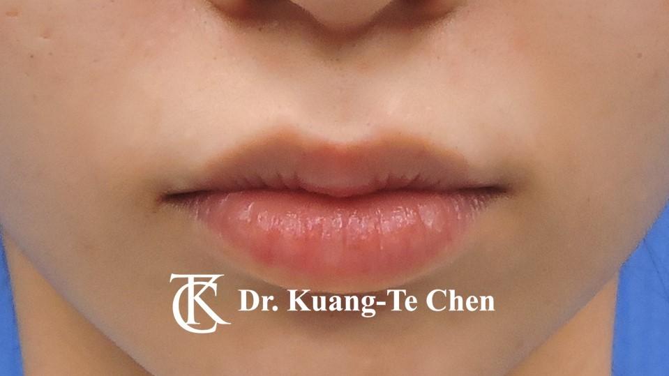 Case 5 上唇唇珠手術後-2