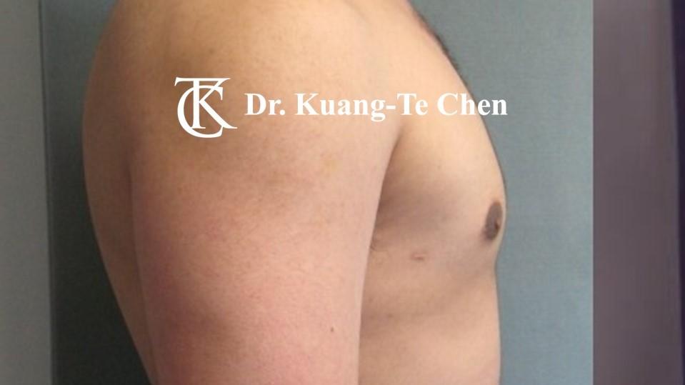 男性女乳症手術術後 陳廣得醫師 20