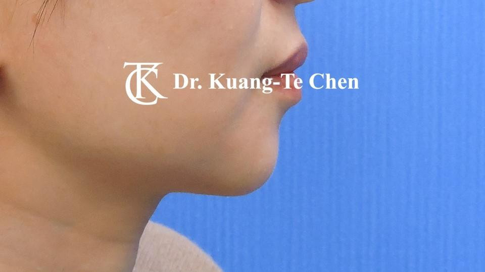 墊下巴手術Case 1術後 -3