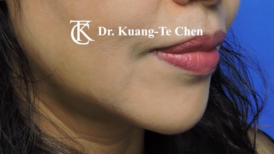 嘴邊下垂輪廓線微創雷射溶脂手術陳廣得醫師Case2 術後-3
