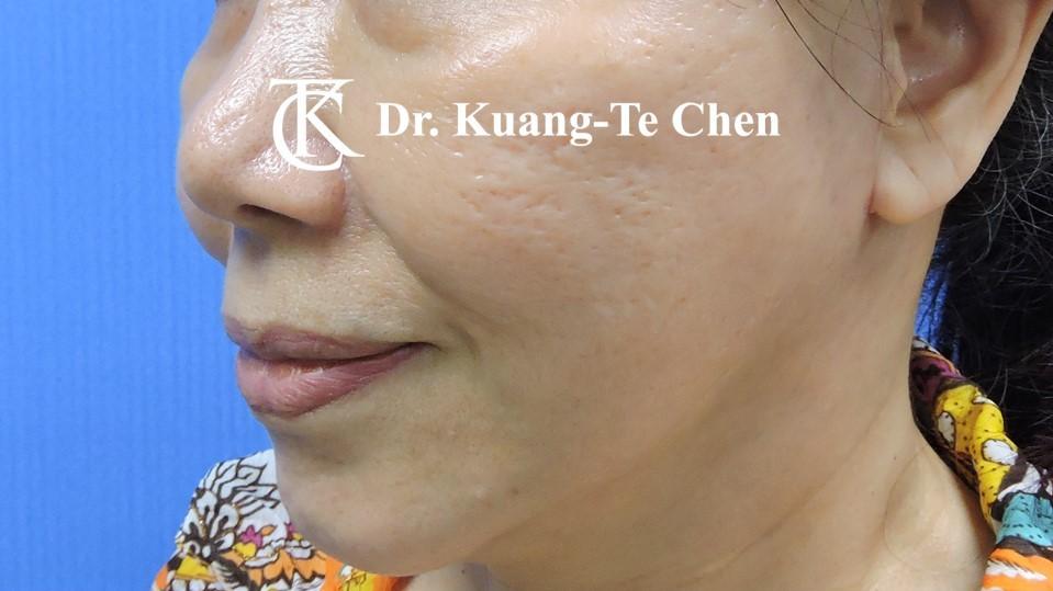中下臉拉皮 陳廣得醫師專業拉皮手術Case6術後-1