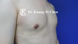 男性女乳症手術術後 陳廣得專業整形12