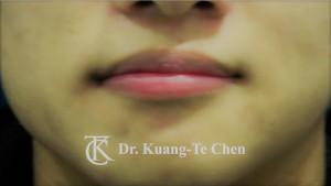 不對稱唇 下唇修唇術後3
