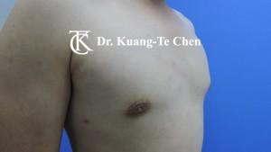 男性女乳症手術術後3