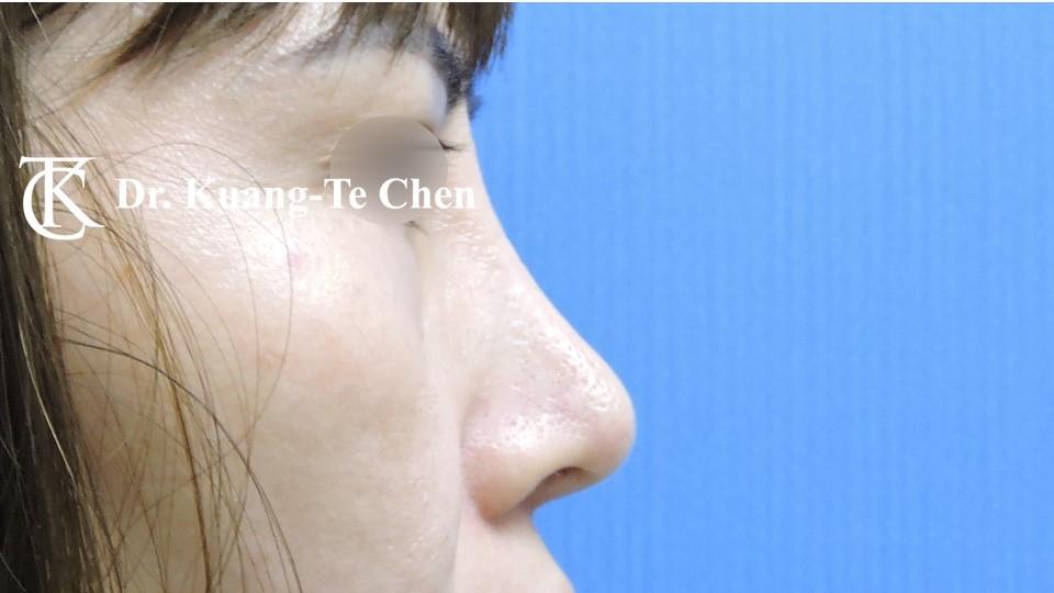 二次隆鼻 Case 1 術後-4