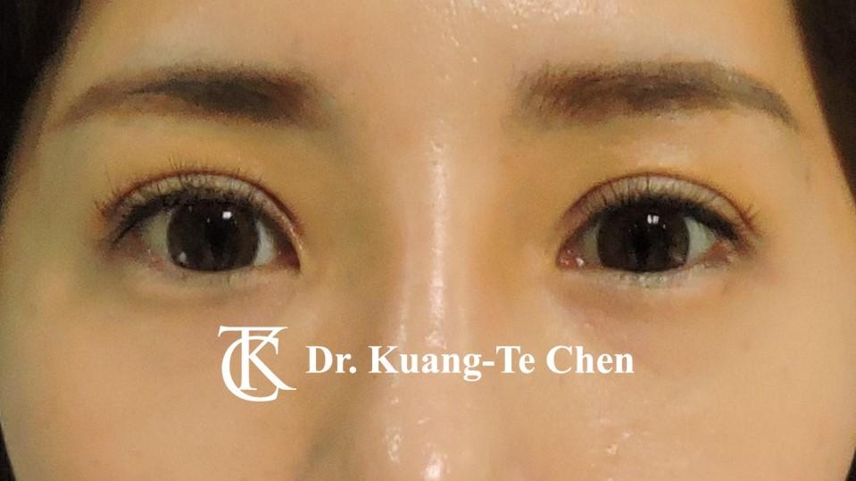 雙側輕度提眼瞼肌無力術後7