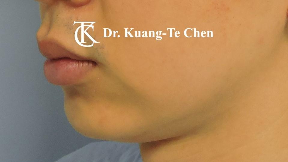 嘴邊下垂輪廓線微創雷射溶脂手術陳廣得醫師Case3 術前-1