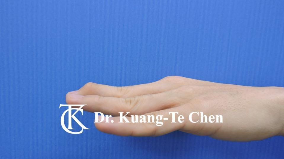 鎚狀指手術Case 2 術前-2