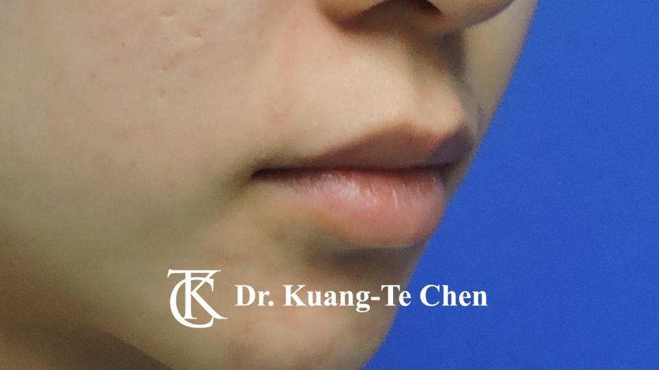 Case 5 上唇唇珠手術前-3