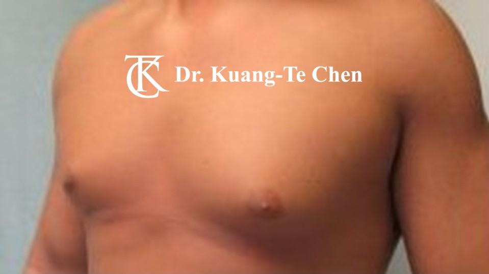 男性女乳症手術術前 陳廣得醫師 19