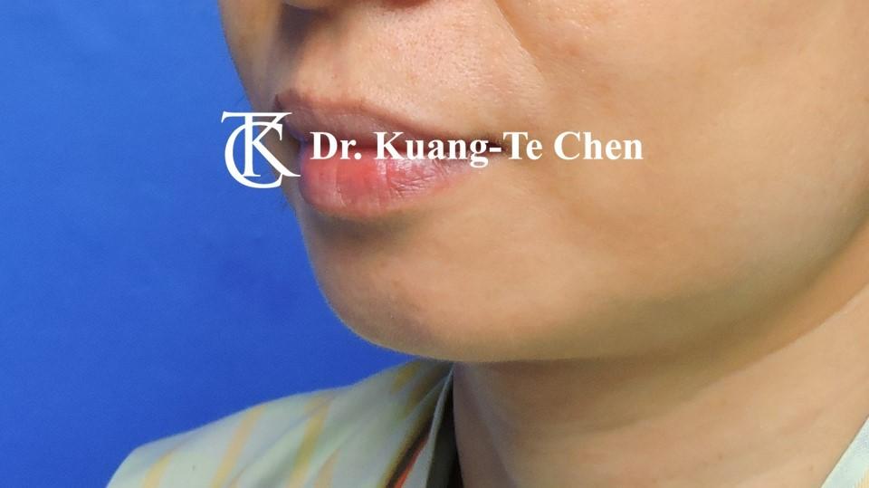 墊下巴手術Case 1術前 -4