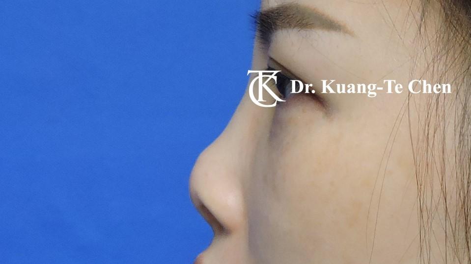 二次隆鼻手術 Case 2 術前-2