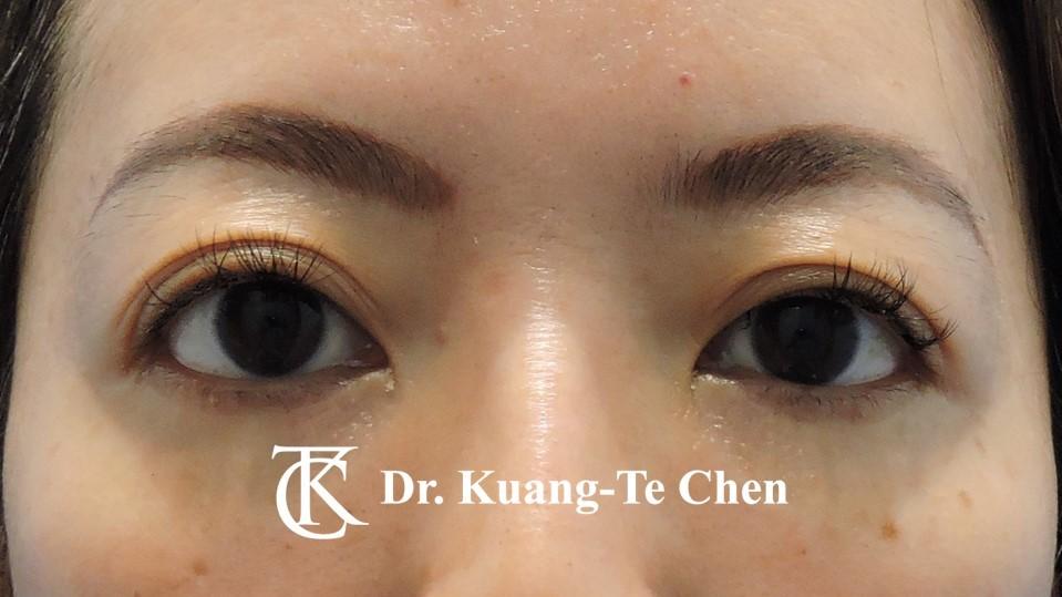 眼袋外開脂肪下推Case 1 術後六個月-1