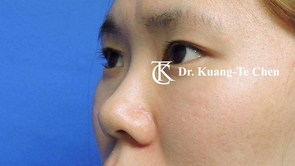 韓式結構式隆鼻 case 1 術前-1