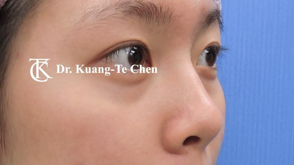 韓式結構式隆鼻 case 3 術前-1