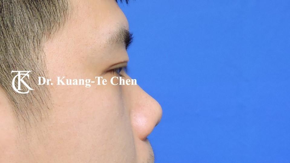 韓式隆鼻,陳廣得醫師,台北隆鼻,案例5