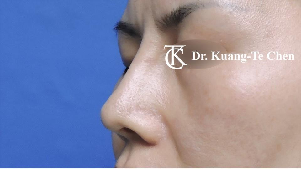 二次隆鼻 Case 1 術前-5