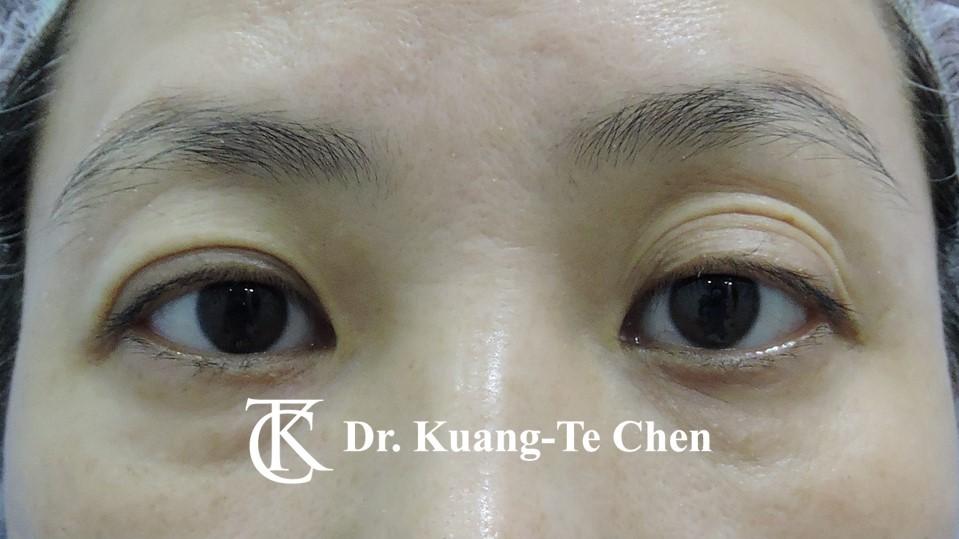 左側輕度提眼瞼肌無力術前8