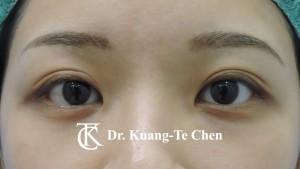 雙眼皮重修術前4