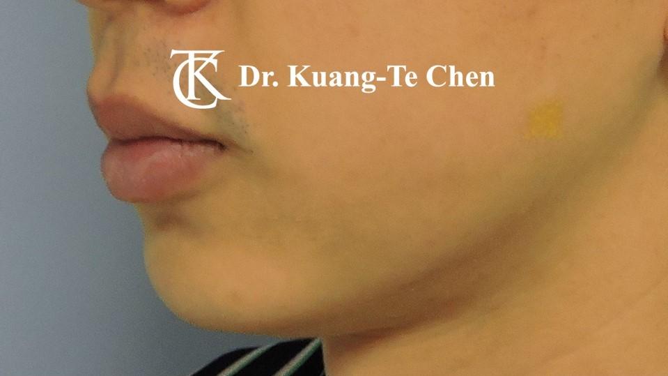 嘴邊下垂輪廓線微創雷射溶脂手術陳廣得醫師Case3 術後-1