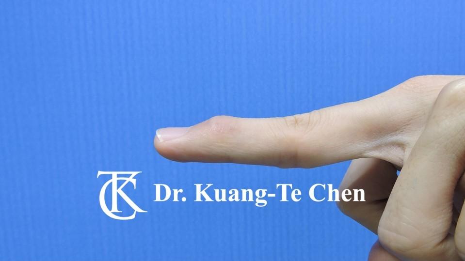 鎚狀指手術Case 2 術後-1