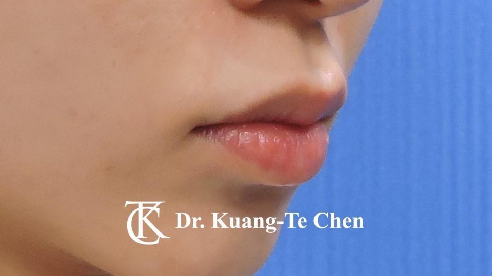 Case 5 上唇唇珠手術後-3