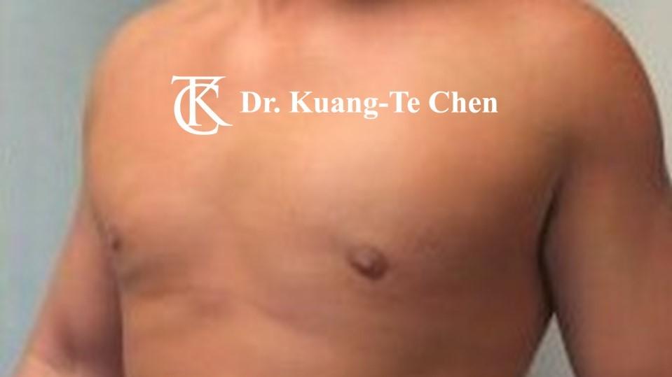 男性女乳症手術術後 陳廣得醫師 19