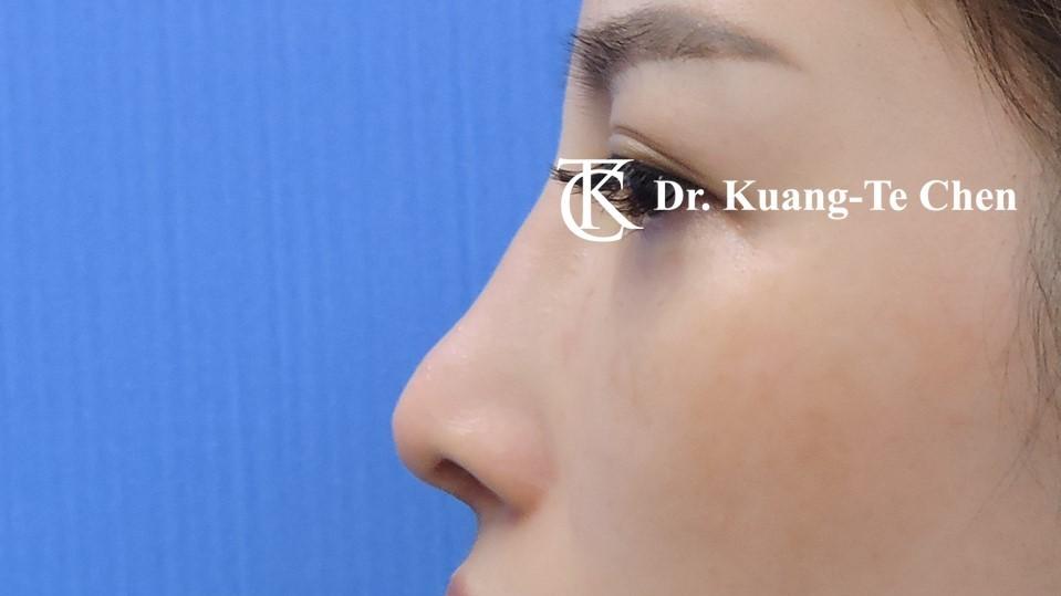 二次隆鼻手術 Case 2 術後-2