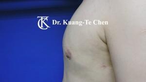 嚴重男性女乳症手術術後 陳廣得專業整形 13