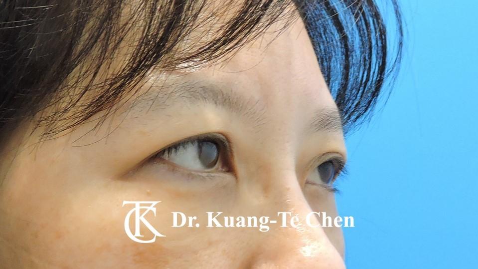 眼袋內開淚溝補脂Case 2 術後-2