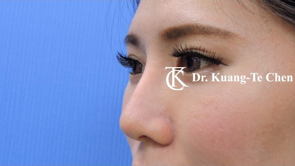 韓式結構式隆鼻 case 1 術後-1