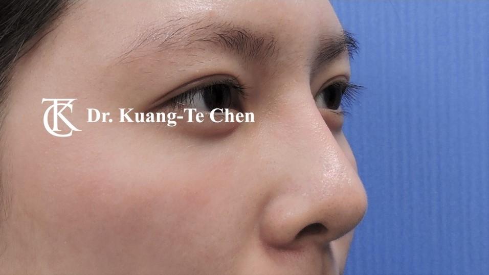 韓式結構式隆鼻 case 3 術後-1