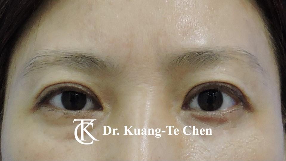 左側輕度提眼瞼肌無力術後8