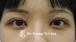 雙眼皮重修術後4